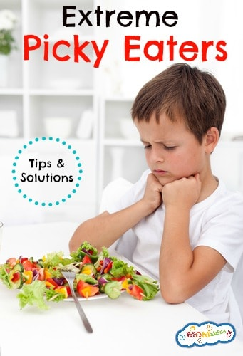 Extreme Picky Eaters {Podcast}